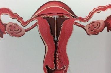 contraceptive coil
