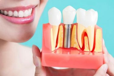 dental implants requirements