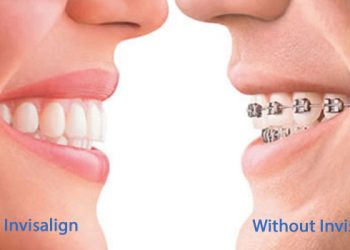 Invisalign Without A Dentist